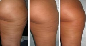 natural cellulite removal